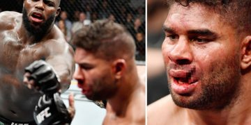 10 Worst Injuries in UFC History by closed guard media (CGM) (closedguardmedia.com)